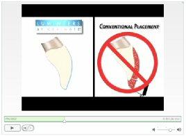DenmatLumineers-VideoPermanentWitteTanden